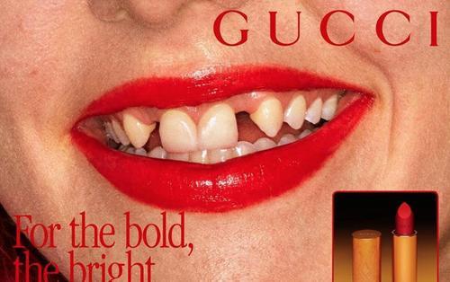 Nhà mốt Gucci gây sốc khi sử dụng người mẫu răng vàng ố, sún hở lợi để quảng cáo
