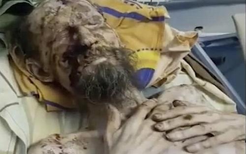 Thực hư câu chuyện người đàn ông trông giống xác ướp, bị gấu nhốt cả tháng trời để làm thức ăn