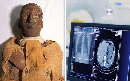 Ảnh chụp cắt lớp hé lộ chi tiết sốc trong vụ ám sát dã man Pharaoh Ai Cập