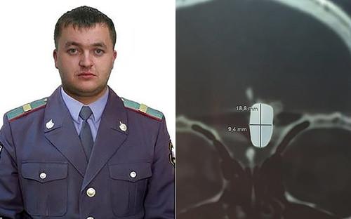 Cựu cảnh sát sống chung với viên đạn găm trong não suốt 10 năm