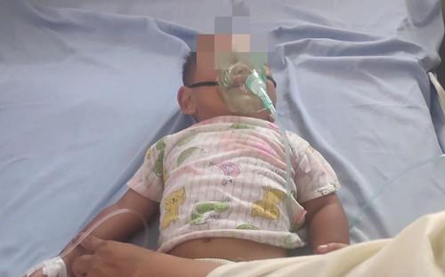 Cứu bé trai 16 tháng tuổi uống nhầm dầu hỏa bỏ trong vỏ chai nước khoáng