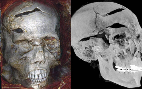 Cái chết thảm khốc của vị pharaoh có xác ướp 'xấu nhất lịch sử'