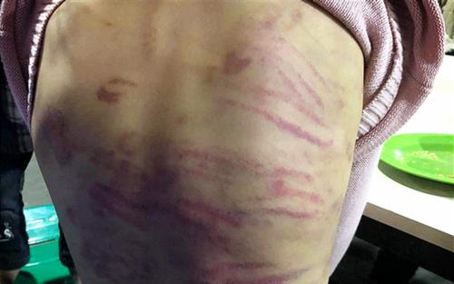 Bé gái 12 tuổi nghi bị mẹ ruột bạo hành, người tình của mẹ xâm hại nhiều lần