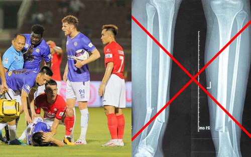Thực hư ảnh chụp X-quang gãy chân của Hùng Dũng sau chấn thương kinh hoàng
