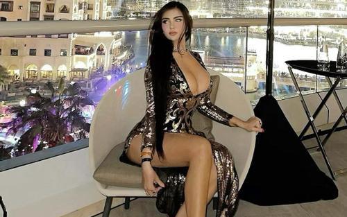 Cô gái suýt bại liệt vì phẫu thuật thẩm mỹ giống Kim Kardashian