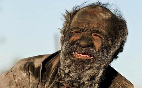 'Người đàn ông bẩn nhất thế giới' không tắm suốt 67 năm qua