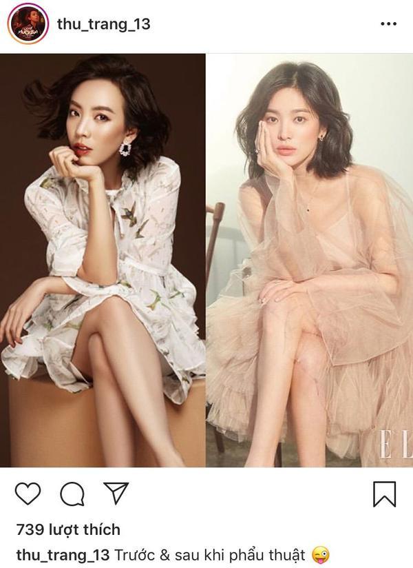 """Thu Trang khoe ảnh """"trước và sau phẫu thuật"""" khiến fan """"cười ngất""""."""