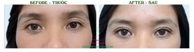 Những công nghệ thẩm mỹ mắt hiện đại