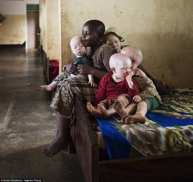 Cuộc sống thấp thỏm của những thần bất tử ở châu Phi