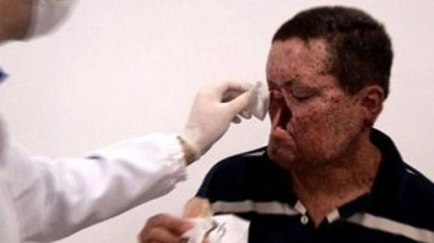 Một người phải phẫu thuật cắt mũi và hàm trên vì bệnh.