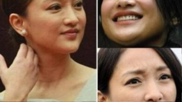 Châu Tấn từng được mệnh danh là người đẹp trẻ thơ. Nhưng đó đã là chuyện quá khứ khi giờ đây cô không thể che lấp vùng mắt đầy nếp nhăn, làn da không căng mịn của mình.
