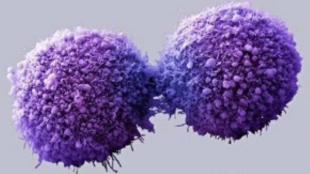 Các tế bào ung thư tuyến tuỵ đang phân chia. Ảnh: The Guardian.