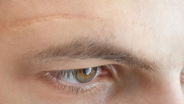 3 vị trí sẹo không nên xuất hiện trên mặt