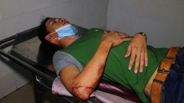 Ngay trong đêm 31/1, các nạn nhân bị tai nạn được chuyển đến Bệnh viện đa khoa Quảng Ngãi cấp cứu.