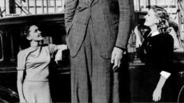 Robert Wadlow (1918-1940) lập kỷ lục Guinness cho chiều cao không tưởng 2,72m. Ông còn được bầu chọn là người có bàn tay dài nhất với chiều dài gần 33cm.