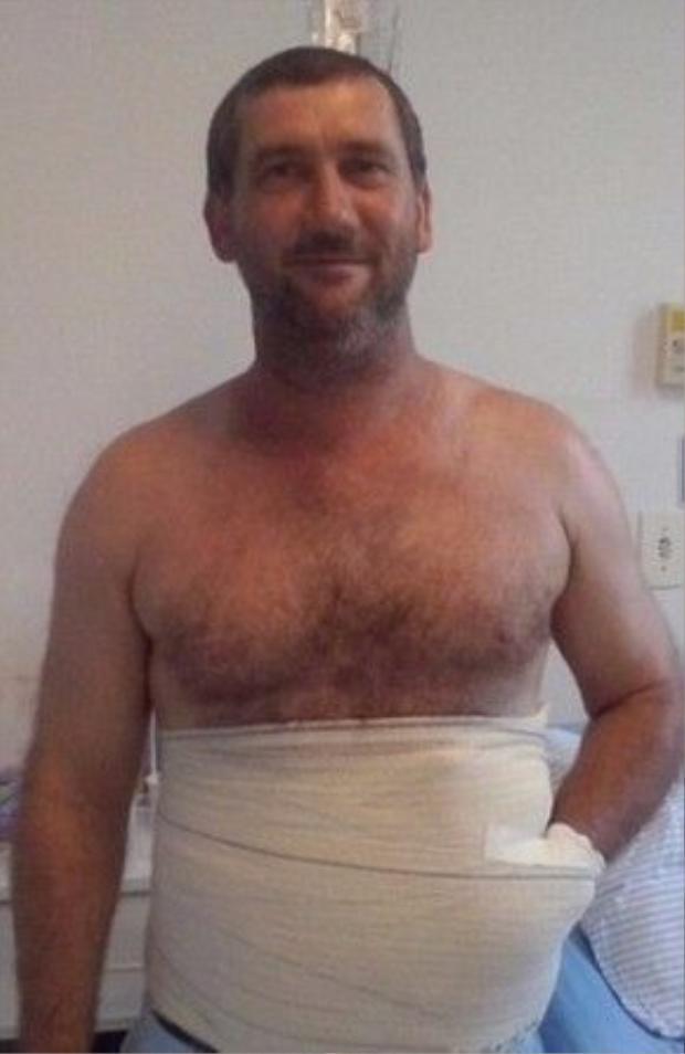 Ông Carlos vẫn còn bàng hoàng khi tỉnh dậy sau ca phẫu thuật. Ông biết tình trạng tai nạn của mình vô cùng nghiêm trọng và không ngờ bàn tay đã được giữ lại bằng cách nhét vào trong ổ bụng như vậy.