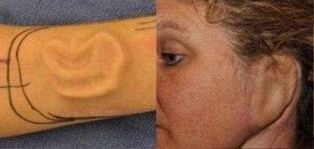 """Bệnh viện Johns Hopkins tại Maryland, Mỹ đã tiến hành """"trồng"""" tai của một nữ bệnh nhân vào cánh tay để cứu lấy đôi tay bị ung thư biểu bì mô tế bào."""