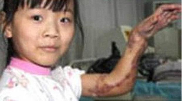 Bác sỹ quyết cứu bàn tay bị lột da bằng cách nhét vào  ổ bụng
