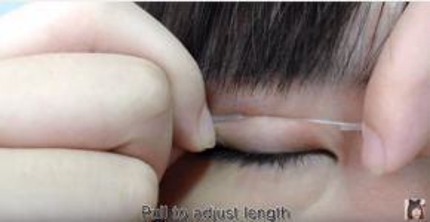 Từ từ căng sợi chỉ và nhẹ nhàng đặt lên vùng mí mắt. Sau đó nhẹ nhàng ấn sợi chỉ sao cho dính chặt vào mí.