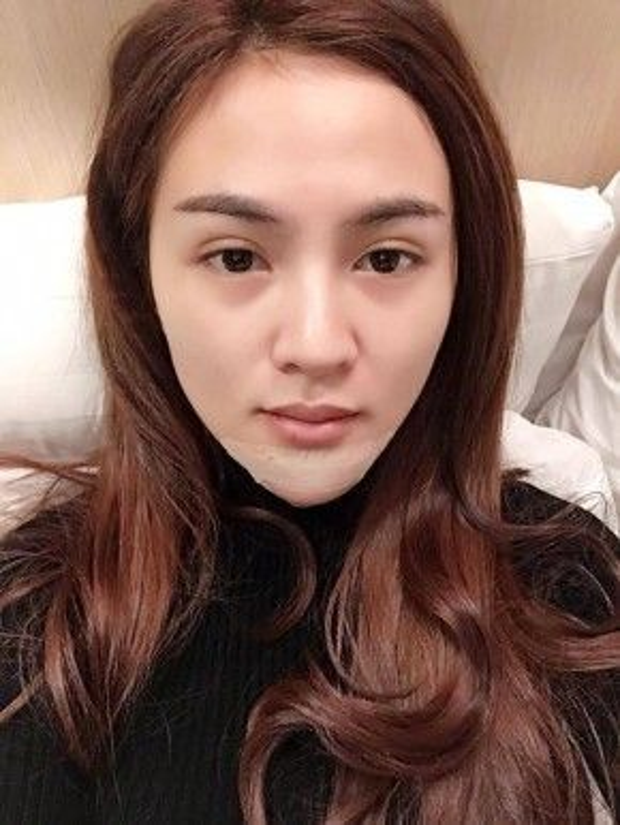 Hình ảnh Kelly Nguyễn sau cuộc phẫu thuật trùng tu nhan sắc.