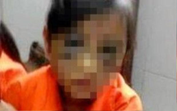 Gương mặt sưng to và hai mắt bầm đen của bé gái 6 tuổikhiến nhiều người không khỏi xót xa, phẫn nộ.