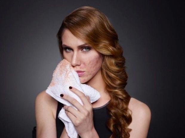 Không cần photoshop, mụn cỡ nào make-up cũng che được!