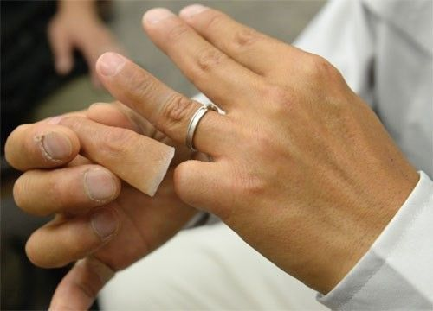 Chuyện làm ngón tay giả cho cựu thành viên băng đảng xã hội đen khét tiếng Nhật Bản Yakuza