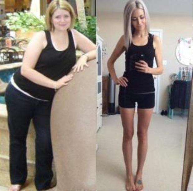 Những hình ảnh trước và sau khi giảm cân khiến nhiều người khó có thể nhận ra Sarah Reynolds.