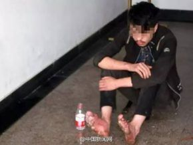 Hình ảnh anh chàng 19 tuổi vì mải chơi điện tử quên ăn, quên ngủ và quên cả động chân đến nỗi hư thối cả bàn chân.