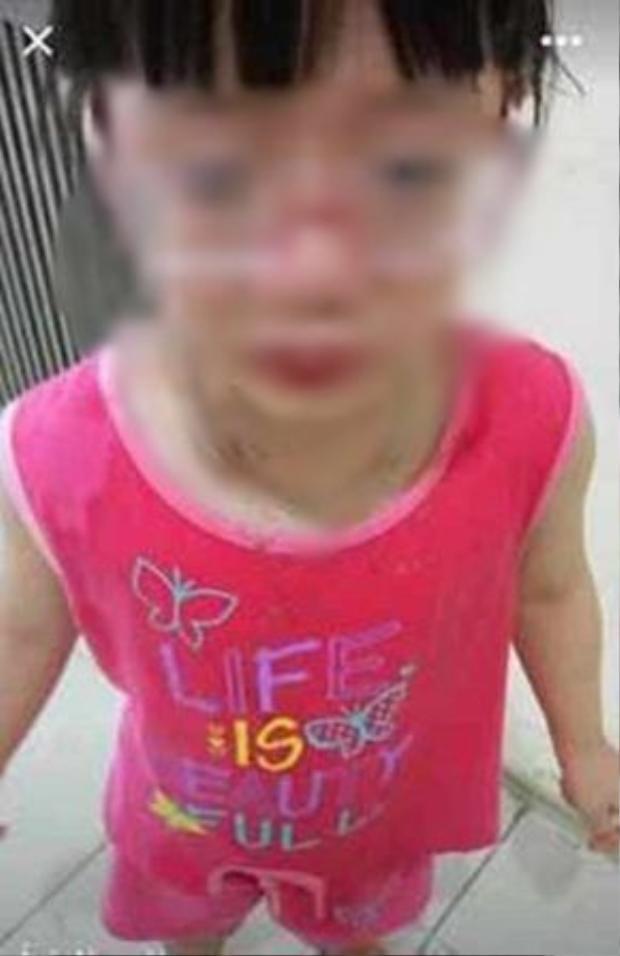 Cháu bé 5 tuổi bị cô giáo người Mỹ hất mắm tôm vào người