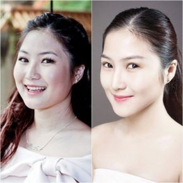 Cận cảnh sự khác biệt rõ rệt trên khuôn mặt của cô sau quá trình giảm cân.