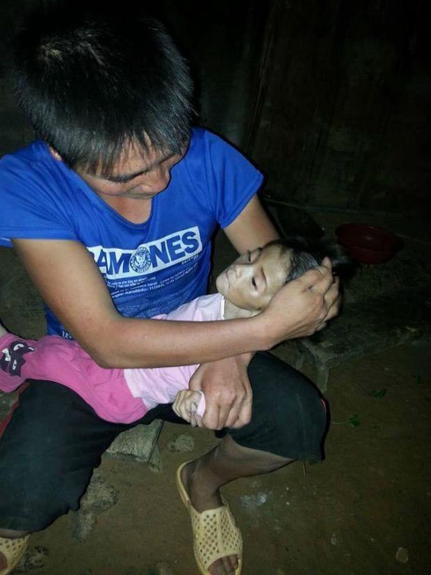 Thông tin mới nhất về cháu bé 14 tháng tuổi, chỉ nặng 3,5kg ở Lào Cai