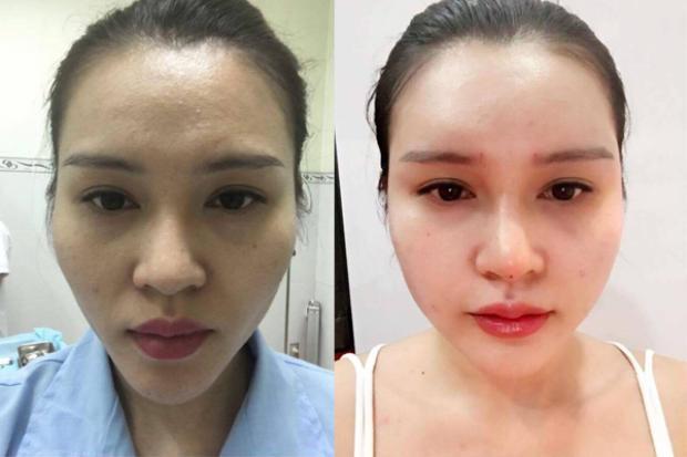 Khuôn mặt đầy đặn, làn da căng bóng là kết quả có được nhờ cấy mỡ