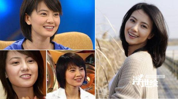 """Cao Viên Viên được đánh giá là """"Nghệ sĩ có khả năng chụp ảnh đẹp nhất làng giải trí Hoa ngữ"""". Thế nhưng, trước khi có nụ cười tươi tắn hoàn hảo như hiện nay, cô cũng phải chịu đau đớn để niềng răng."""
