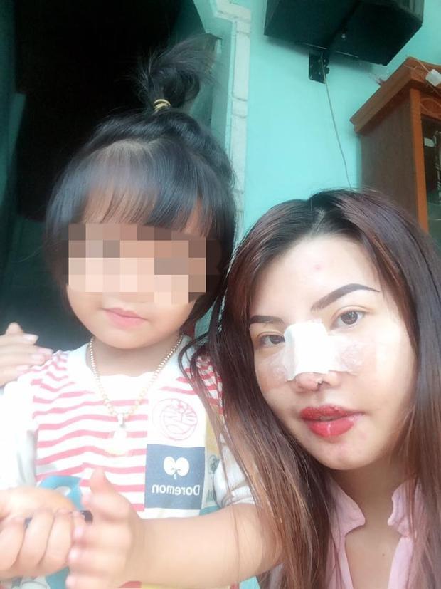 Diện mạo mới của bà mẹ đơn thân ở Đắk Nông quyết đi phẫu thuật vì quá xấu