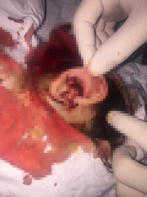 Tai của Tr. chảy rất nhiều máu sau khi bị nhóm thanh niên mưu sát.