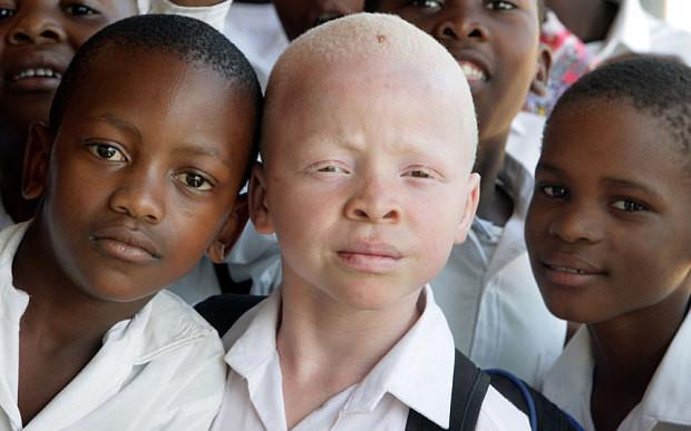 Cứ 20.000 người sẽ có 1 người mắc bệnh bạch tạng, ở châu Phi tỉ lệ này là cao nhất.