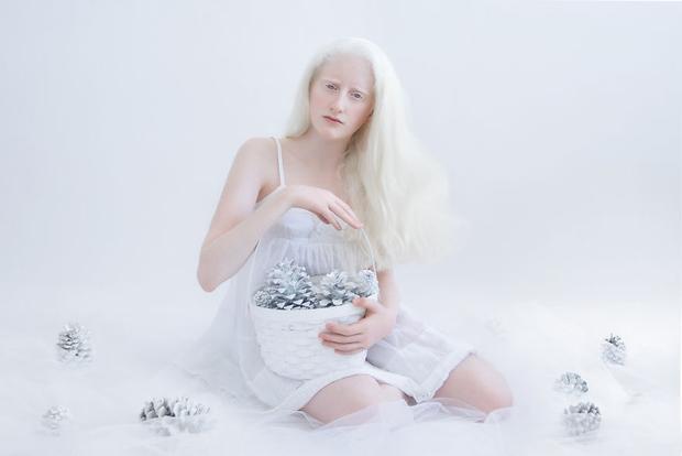 Nhiều người bạch tạng nhận ra họ đang sở hữu vẻ đẹp hiếm có.