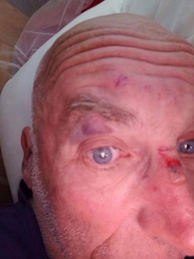 Chỉ trong vài phút ngắn ngủi, người đàn ông lớn tuổi này đã bị đánh tới tấp dẫn đến đổ máu.