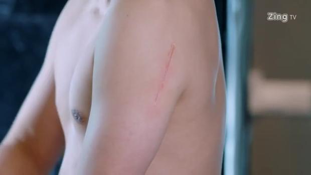 Vết sẹo của Tịch Si Thần sau vụ tai nạn xe bus