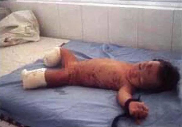 Haven Shepherd - tên Việt là Do Thi Phuong - may mắn còn sống nhưng bị tổn thương nặng nề.