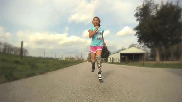Với đôi chân giả, cô bé không chỉ tung tăng chạy trên đường…