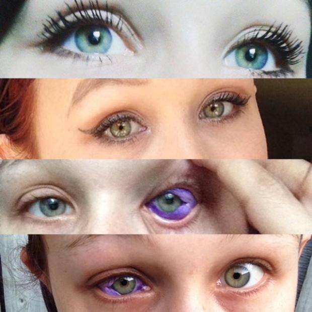 Đua đòi xăm tròng mắt, cô gái trẻ bị chảy dịch tím, có nguy cơ mù
