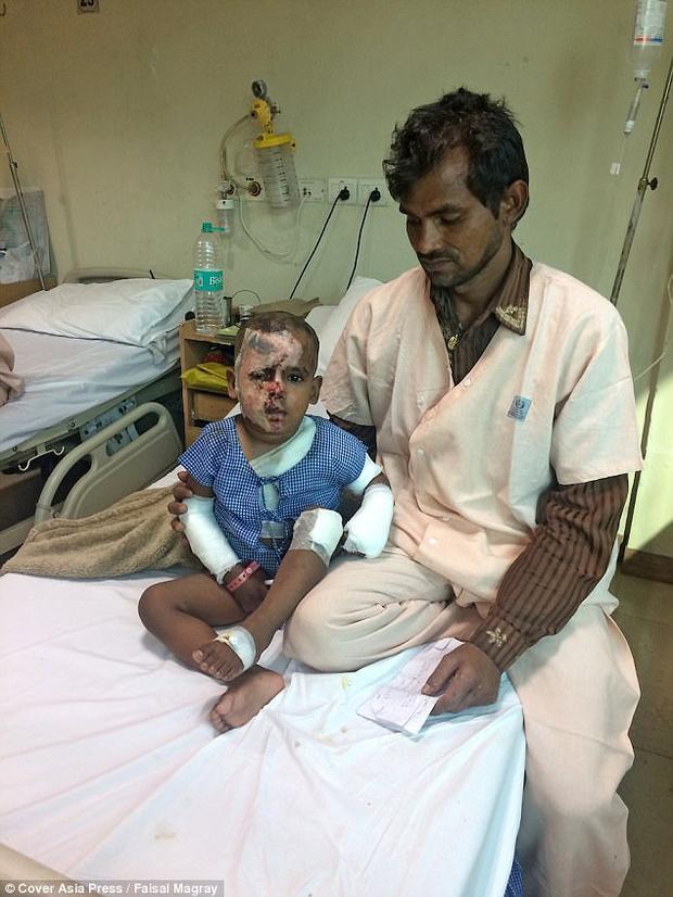 Cha của Soni vẫn không thể nào tin được rằng con trai mình được điều trị miễn phí tại bệnh viện tư nhân nổi tiếng ở Ấn Độ.