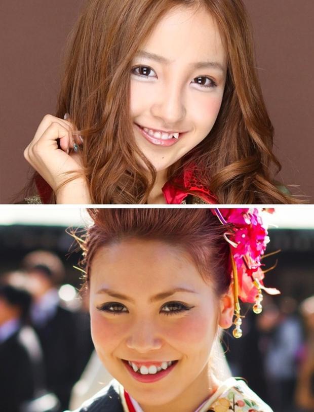 """Ở các nước phương Tây, một hàm trăng trắng đều được coi là tiêu chuẩn của nụ cười hoàn hảo. Nhưng bạn có thể hình dung được không, sức hấp dẫn lại nằm ở một hàm răng khểnh, hay còn gọi là """"yeabe"""". Người Nhật tin rằng con gái trông sẽ dễ thương hơn nếu có đặc điểm này. Đó cũng là lý do vì sao nha sĩ Nhật Bản có lượng khách hàng trẻ tuổi rất lớn, bao gồm cả nam và nữ."""