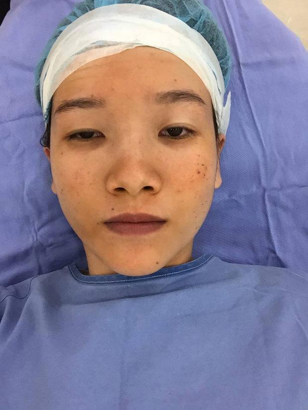 Trước khi PTTM, Hà khá tự ti với mũi tẹt, mắt hí, da đồi mồi