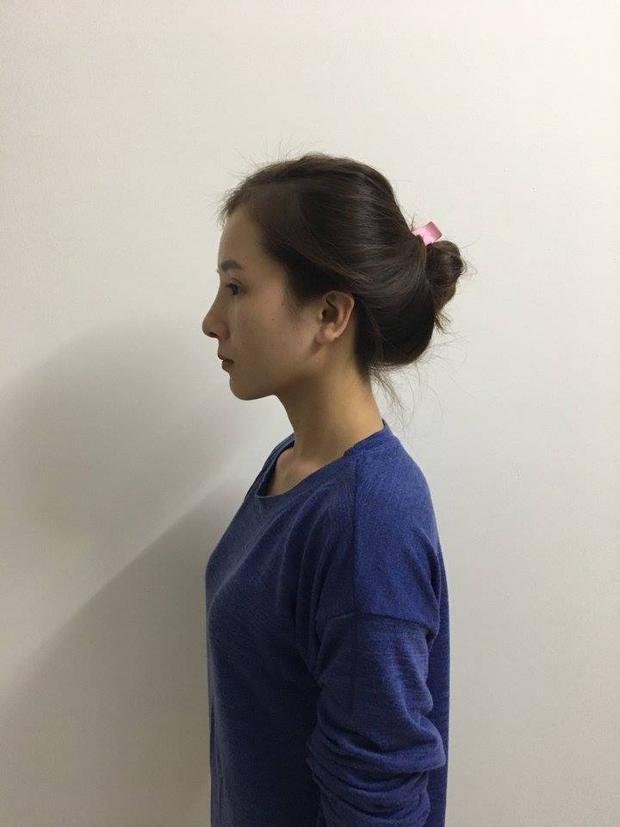Cô gái bị người yêu bỏ vì mắt lươn lên tiếng sau nghi vấn giả xấu để được PTTM