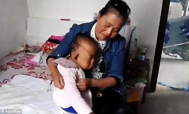 Bà Chu Tiểu Bình phải dành hầu hết thời gian của bà để chăm sóc con trai.