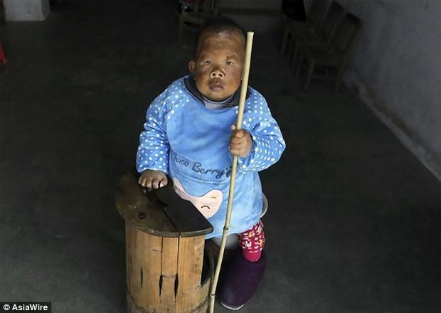 Vương Điền Phương năm này đã 30 tuổi nhưng vẫn trong hình hài một đứa trẻ.