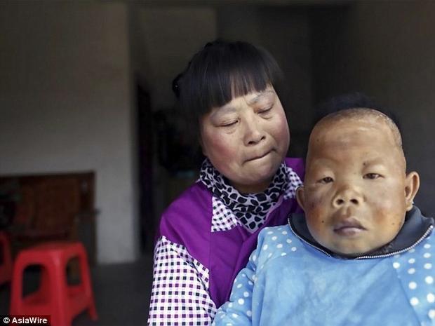 Bà Chu Tiểu Bình cho biết, con trai bà đã ngừng phát triển cả tư duy lẫn vóc dáng khi mới được hai tuổi.